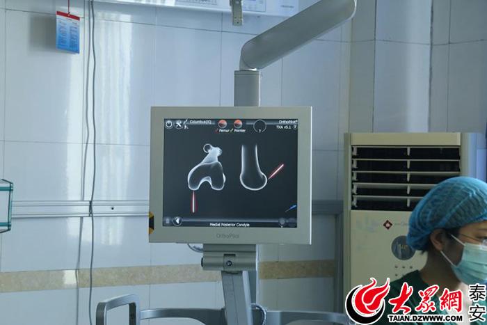 在泰安顾客医院通过德国蛇牌计算机导航软件行左膝关节置换术,手术
