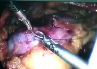 腹腔镜肾部分切镜下缝合肾脏.jpg