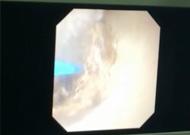 输尿管软镜钬激光碎3cm肾结石.jpg